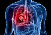 بهترین روش ها برای پاکسازی ریه ها