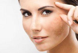 اطلاعاتی در خصوص لک پوستی