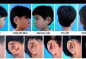 ساخت گوش برای 5 کودک چینی با روش نوین
