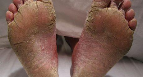 ارتباط 6 بیماری با ترک پاشنه پا
