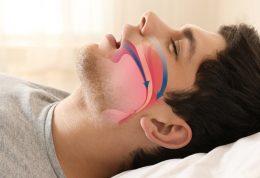 عوامل ایجاد کننده آپنه خواب را بشناسید