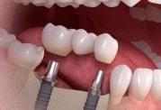 دکتر نظری: پرسش و پاسخ درباره ایمپلنت دندان