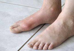 عارضه ای که باعث فلج پاها میشود