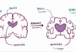 کشف آنزیم تاثیرگذار بر بیماری فراموشی