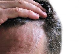 10 کلید طلایی برای جلوگیری از ریزش مو و حفظ سلامتی آنها