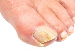 درمان عفونت انگشت پا