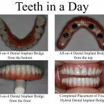 دکتر ترنگ آقابیگی: بررسی ویژگی ها و مزایای مختلف ایمپلنت دندان