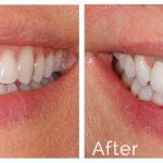 پرسش هایی در رابطه با جراحی ایمپلنت دندان دکتر ترنگ آقابیگی
