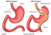 جراحی بای پس معده چگونه انجام می شود؟