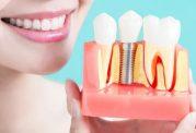 دکتر آقابیگی: در صورت از بین رفتن ریشه ی دندان ناگزیر به انتخاب ایمپلت می شویم