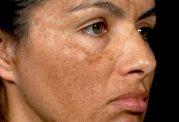 7 دلیل تغییر رنگ ناگهانی پوست