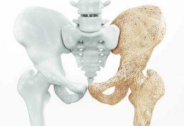 بررسی علل ابتلا به پوکی استخوان و روش های درمان آن