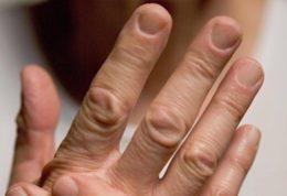 بررسی صفر تا صد بیماری روماتیسم و روش های درمان آن