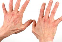 علائم مختلف بیماری روی دستان