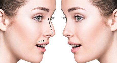 آمادگی های قبل و بعد از جراحی بینی گوشتی