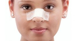 دکتر شاهین کریمیان: در مورد اسپلینت بینی چه می دانید؟