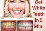 روش های طبیعی برای سفید شدن دندان