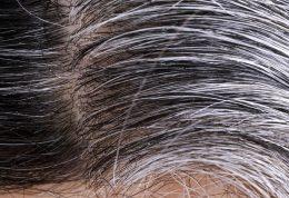 دلایل سفیدی زودرس موها