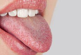 علت بروز بیماری خشکی زبان و دهان