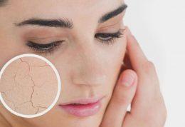 چهار بیماری که با خشکی پوست همراه هستند!