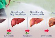 راهنمایی هایی برای افزایش سلامت کبد