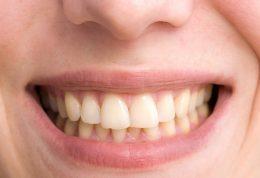 چرا دندان ها زرد و لکه دار می شوند؟