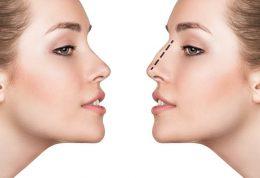 دانستنی های جالب درباره انواع بینی