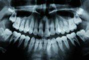 با استفاده از داروی آلزایمر حفره دندان را درمان کنید