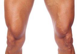 توصیه های مهم برای درمان زانوی ملتهب