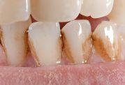 علت ایجاد لکه روی دندان چیست