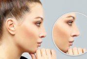 دکتر شاهین کریمیان: انواع بینی و جراحی آن