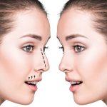 کلینیک امرو: آیا جراحی زیبایی مناسب شما است؟