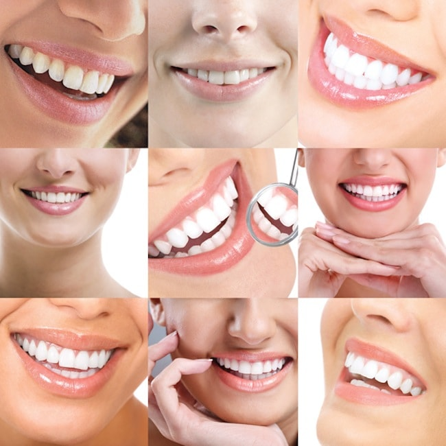 کلینیک آلما: کلیاتی در مورد درمان های زیبایی دندان پزشکی