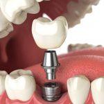 با ایمپلنت کلینیک آلما دیگر نگران دندان های از دست رفته خود نباشید