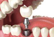دکتر علیرضا نوروزعلی جراح دندانپزشک
