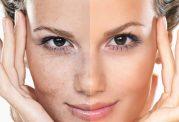 روش های غیر تهاجمی جوانسازی پوست کلینیک گلدن رویال