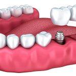 دکتر پیمان کریمیها: ایمپلنت های دندانی