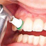 دکتر پیمان کرمانیها: جرم گیری دندان