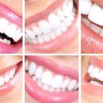 دکتر پیمان کرمانیها: طراحی لبخند