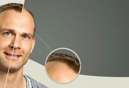 کلینیک امرو: جدیدترین روش های کاشت مو
