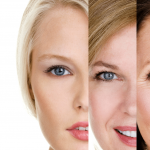 دکتر منوچهر شهسواری: برطرف کردن علائم پیری و چروک پوست