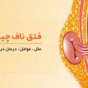 فتق ناف نوزاد و بزرگسالان ؛ علل، علائم، روش درمان