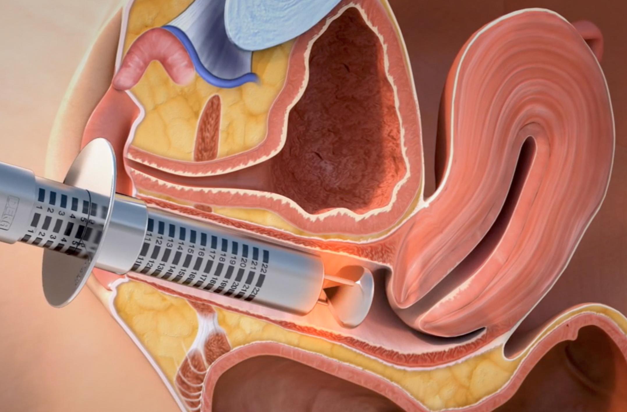 تنگ کردن واژن - تنگ کردن دائمی واژن