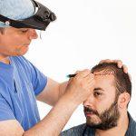 کلینیک خانه سفید: روشهای کاشت مو