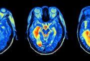 داشتن احساس جوانتر بودن از سن واقعی نشانه سلامت مغز است!