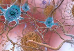 بیماری عفونی هرپس می تواند باعث ایجاد بیماری آلزایمر شود