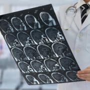 ملانوما : افزایش طول عمر با ایمن درمانی برای متاستاز مغز