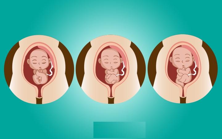 وضعیت جنین در رحم مادر