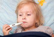 آبله مرغان در کودکان : علل، پیشگیری و راه های درمان
