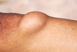 لیپوم یا غده های چربی زیر پوست چیست؟
